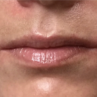 25-34 year old woman treated with Juvederm before 3099048