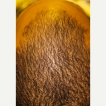 Hair thinning treatment in short hairstyle - non-surgical Hair Regeneration (PRP+ACell) after 2800980