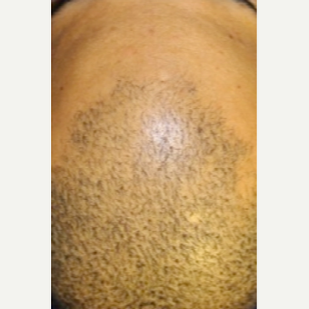 Hair thinning treatment in short hairstyle - non-surgical Hair Regeneration (PRP+ACell) before 2800980