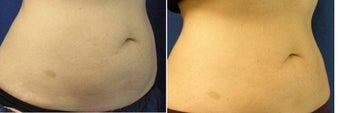 CoolSculpting Results 1037991