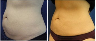 CoolSculpting Results after 1037991