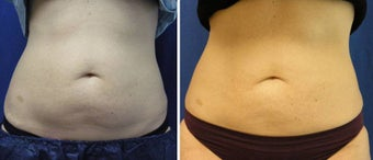 CoolSculpting Results before 1037991