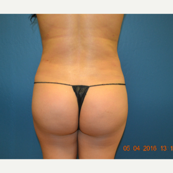 18-24 year old woman treated with Brazilian Butt Lift after 3169932
