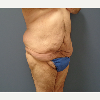 45-54 year old man treated with Body Lift before 3628600