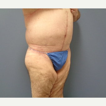 45-54 year old man treated with Body Lift after 3628600