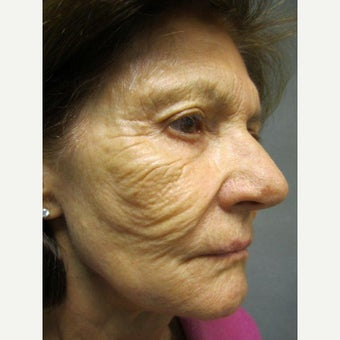 75 and up year old woman treated with Fraxel Repair before 1651286