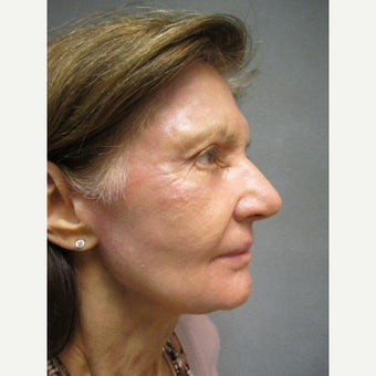 75 and up year old woman treated with Fraxel Repair after 1651286
