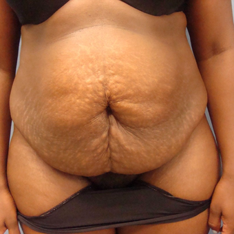 25-34 year old woman treated with Tummy Tuck before 3448189