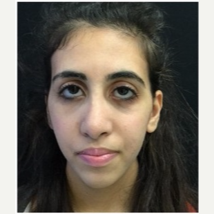 18-24 year old woman treated with Rhinoplasty after 3047015