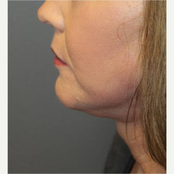 61 year old woman treated with Neck Lift 1594973