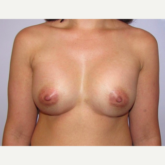 33 year old woman underwent breast augmentation with 380 cc silicone breast implants after 3467920