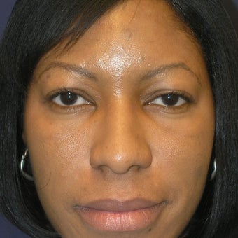 35-44 year old woman treated with Rhinoplasty after 1793893
