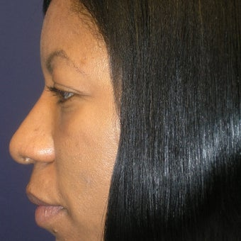 35-44 year old woman treated with Rhinoplasty 1793893