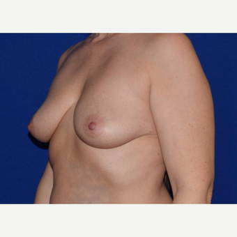 45-54 year old woman treated with Breast Augmentation with Ideal Saline Breast Implant before 3105068
