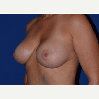45-54 year old woman treated with Breast Augmentation with Ideal Saline Breast Implant after 3105068