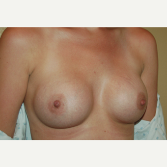 25-34 year old woman treated with Breast Augmentation after 3421445