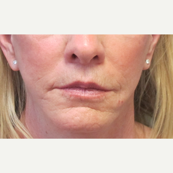 55-64 year old woman treated with Lip Lift after 2705924