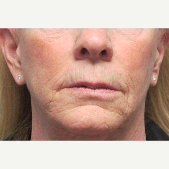 55-64 year old woman treated with Lip Lift before 2705924