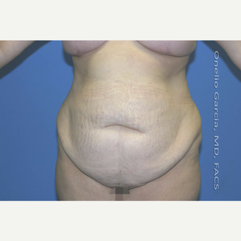 35-44 year old woman treated with Tummy Tuck before 2999107