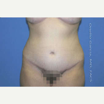 35-44 year old woman treated with Tummy Tuck after 2999107