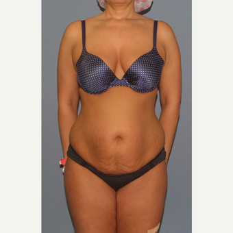 35-44 year old woman treated with Tummy Tuck before 3559127