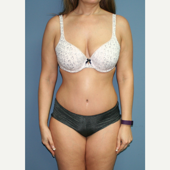 35-44 year old woman treated with Tummy Tuck after 3559127