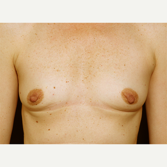 18-24 year old woman treated with Breast Augmentation before 3061570