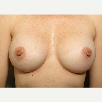 18-24 year old woman treated with Breast Augmentation after 3061570