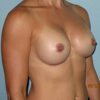 25-34 year old woman treated with Breast Augmentation after 3392298