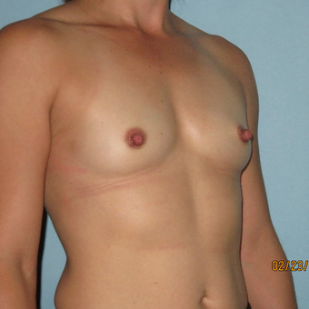 25-34 year old woman treated with Breast Augmentation before 3392298
