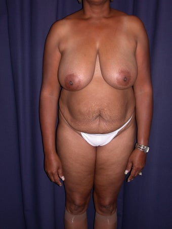 Breast Reducton & Tummy Tuck before 696898