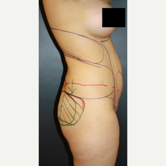 45-54 year old woman treated with Liposculpture before 3055728