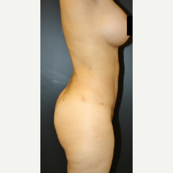 45-54 year old woman treated with Liposculpture after 3055728