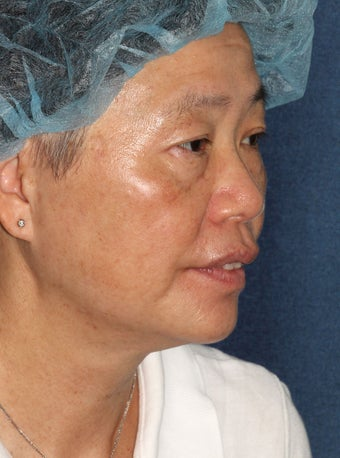 57 year old Asian female with age spots and brown spots after 1058223
