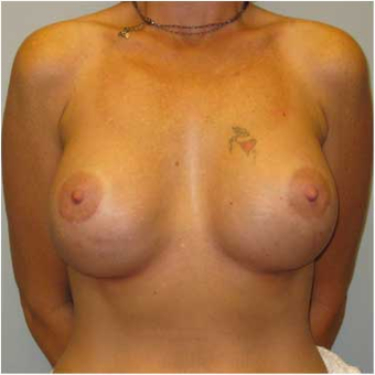 37 year old woman treated with Breast Augmentation after 3468351