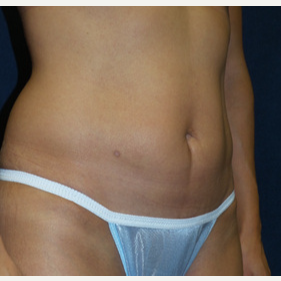 45-54 year old woman treated with Tummy Tuck after 3453698