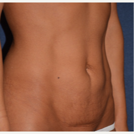 45-54 year old woman treated with Tummy Tuck before 3453698