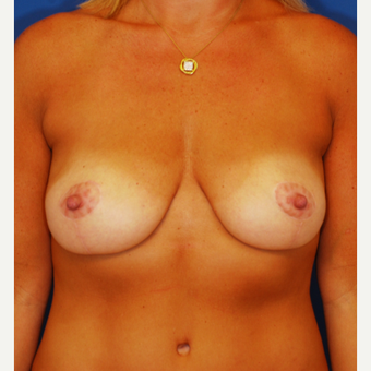 35-44 year old woman treated with Breast Lift after 3619214