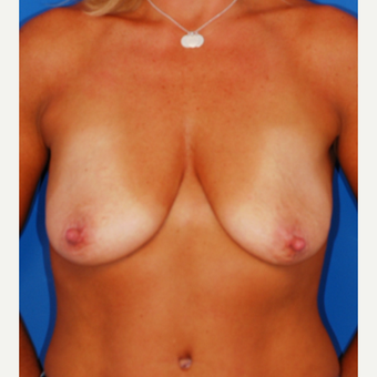 35-44 year old woman treated with Breast Lift before 3619214