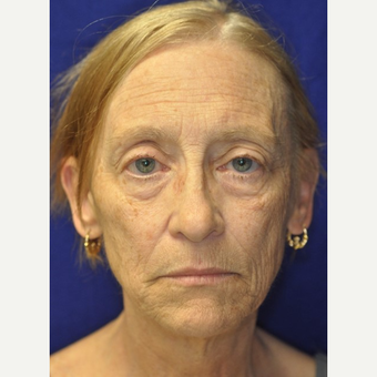 65-74 year old woman treated with Facelift before 3849262