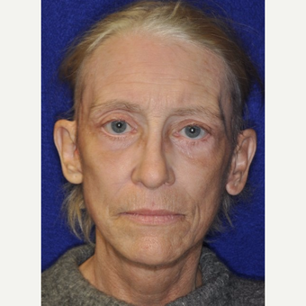 65-74 year old woman treated with Facelift after 3849262