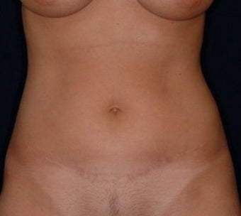 Mini-Tummy Tuck and Abdominal Tumescent Liposuction Result at 2 years in a 35-year old after 1550869