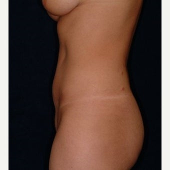 Mini-Tummy Tuck and Abdominal Tumescent Liposuction Result at 2 years in a 35-year old 1550869