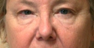 65-74 year old woman treated with Brow Lift before 3046869