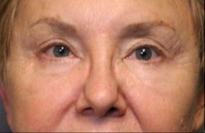 65-74 year old woman treated with Brow Lift after 3046869