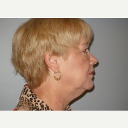 45-54 year old woman treated with Facelift before 3109322