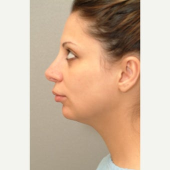 25-34 year old woman treated with neck liposuction