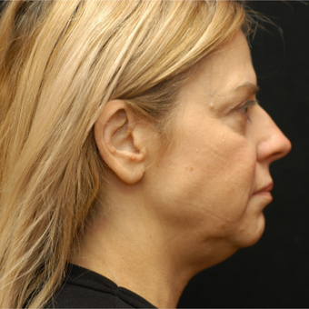 55-64 year old woman treated with Laser Lipo, 5 years later before 3293121