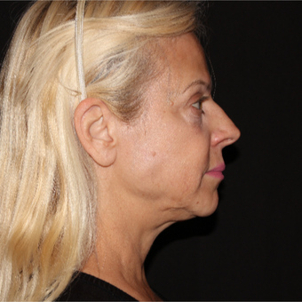 55-64 year old woman treated with Laser Lipo, 5 years later after 3293121