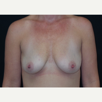 35-44 year old woman treated with Breast Augmentation before 3305033
